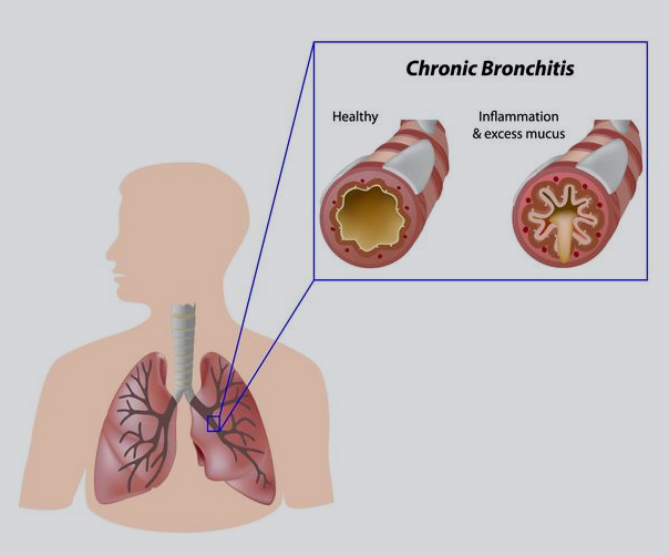 Bronchitis treatment in homeopathy